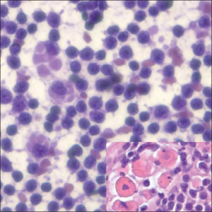 Chronic Lymphocytic Leukemia CLL Histiocytic Cells